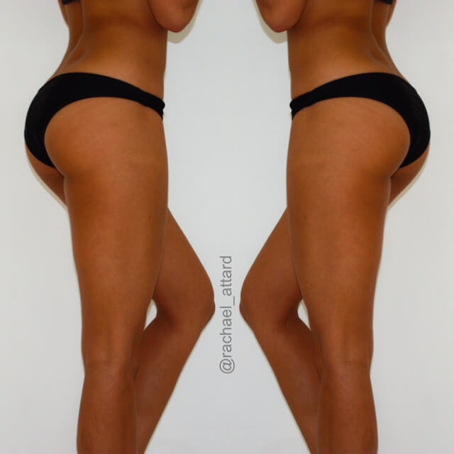 Ways To Reduce Cellulite
