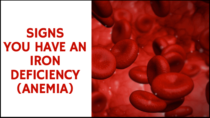 Signs You Have An Iron Deficiency (Anemia)