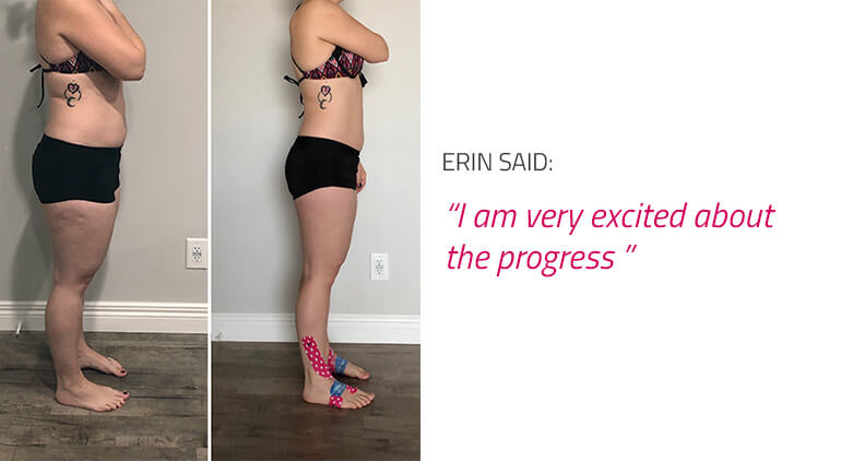 endomorph girl before and after body photo results