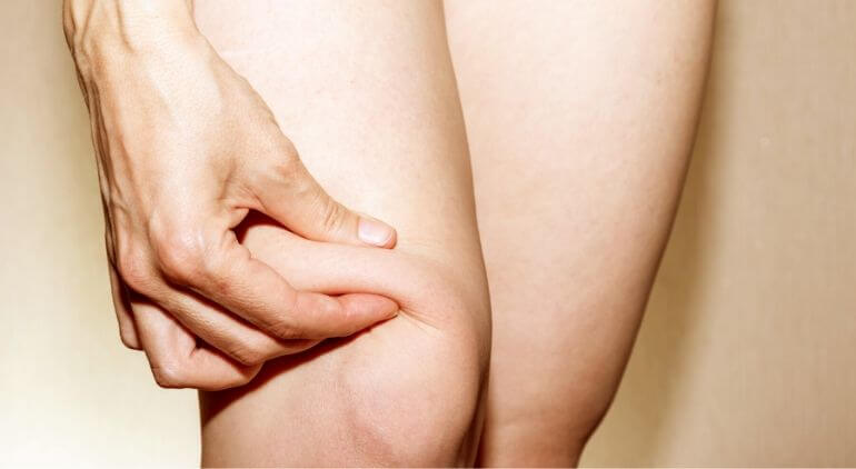 what causes knee fat